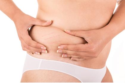 Rozstępy, nadmiar tłuszczu i blizny po cesarskim cięciu można usunąć za pomocą zabiegów estetycznych